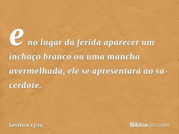 e no lugar da ferida aparecer um inchaço branco ou uma mancha avermelhada, ele se apresentará ao sacerdote. -- Levítico 13:19